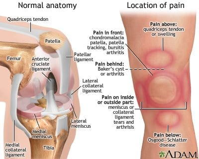 Knee pain chiropractic poole bournemouth cartilage injuries or meniscal tears ccuart Images