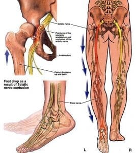 Sciatic_nerve_injury
