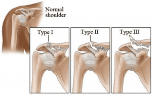 Shoulder pain ligament tears