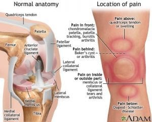 Knee pain areas